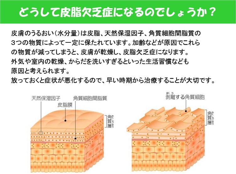 2012年12月25日教室 『ドライスキンケア』_c0219616_13375335.jpg