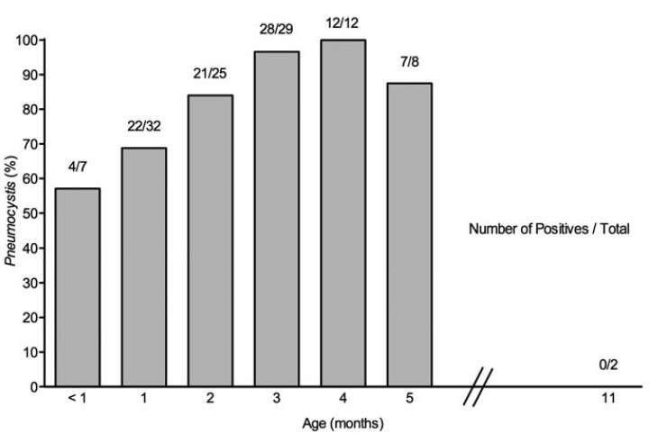 新生児死亡肺にニューモシスティスが高頻度に存在、MUC5AC発現が増加_e0156318_1056671.jpg