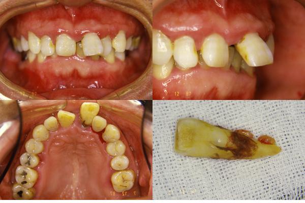 前歯部ピンレッジもうすぐ25年_f0154626_1515436.jpg