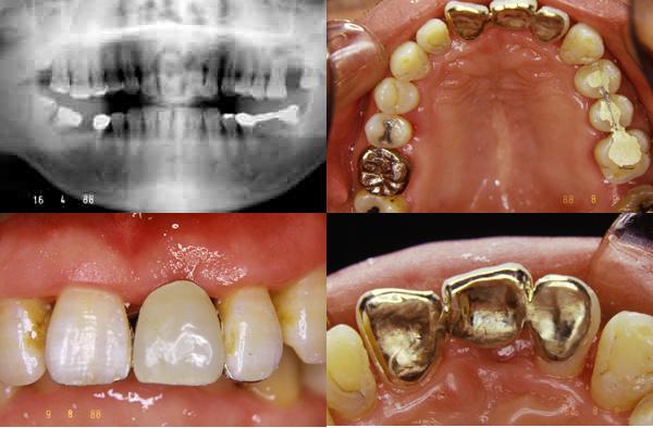 前歯部ピンレッジもうすぐ25年_f0154626_15305485.jpg