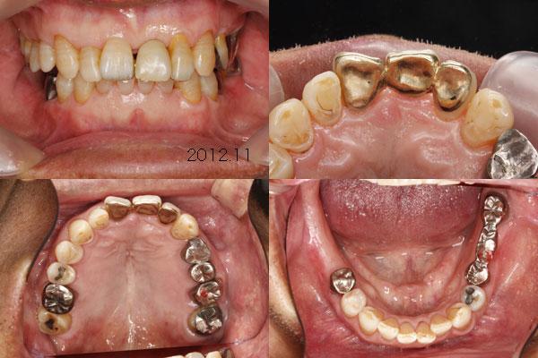 前歯部ピンレッジもうすぐ25年_f0154626_15311086.jpg