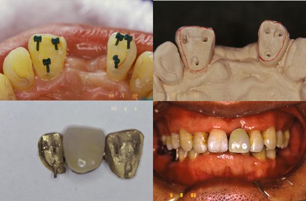 前歯部ピンレッジもうすぐ25年_f0154626_19261110.jpg