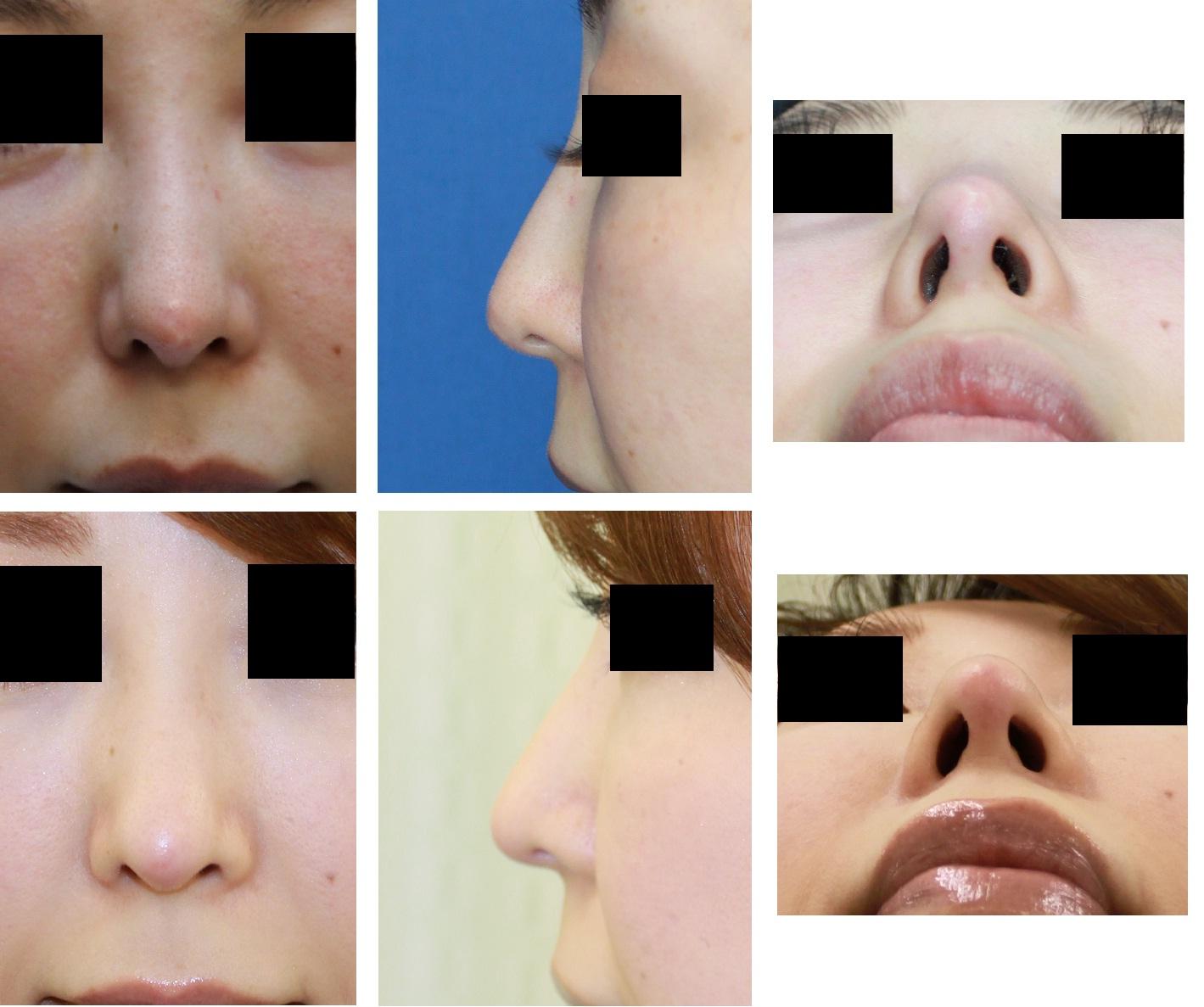 他院鼻先軟骨移植後修正術:  鼻先軟骨トリミング(部分切除) および鼻先婦人科軟部組織移植_d0092965_23525371.jpg