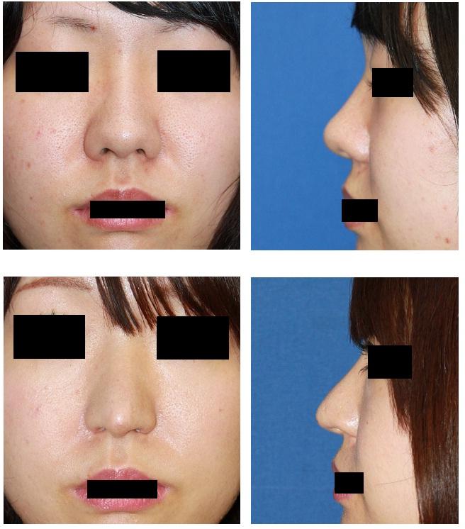 鼻孔縁拳上、鼻尖縮小術、小鼻縮小術、鼻先軟骨移植術_d0092965_1933729.jpg