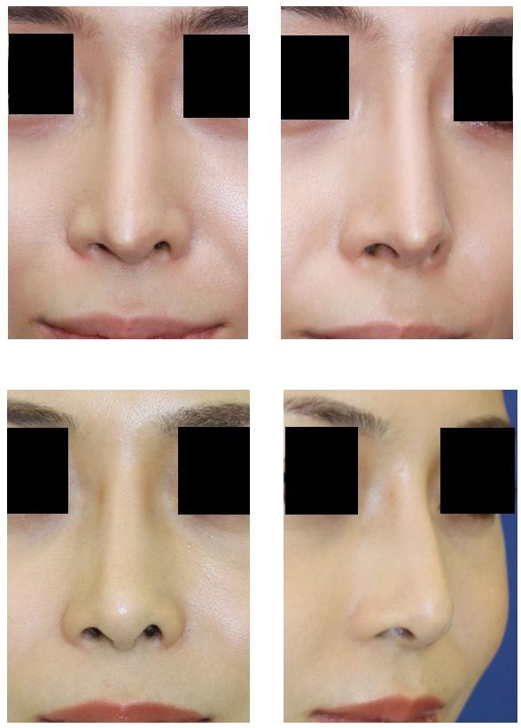 他院鼻尖部軟骨移植術術後!?  婦人科組織を用いての鼻先修正術  術後2年_d0092965_22214092.jpg