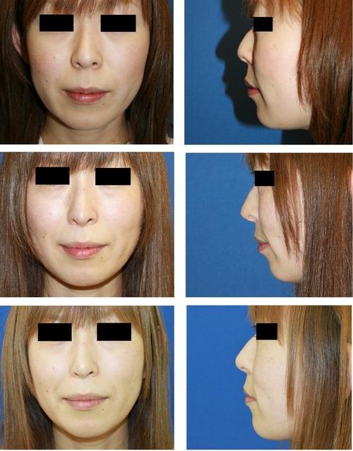 鼻中隔術後合併症(鼻先皮膚透見)に対する修正術後 再透見_d0092965_23414890.jpg