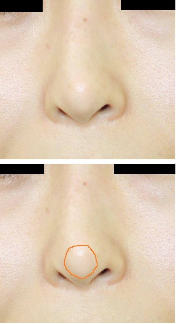 鼻中隔術後合併症(鼻先皮膚透見)に対する修正術後 再透見_d0092965_2357581.jpg