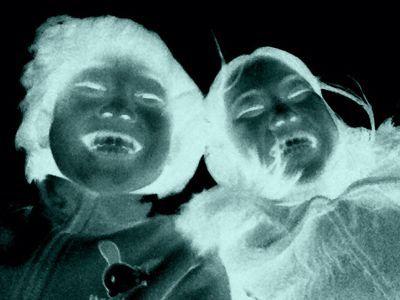 初年女と10歳とレントゲン_f0113361_11294624.jpg