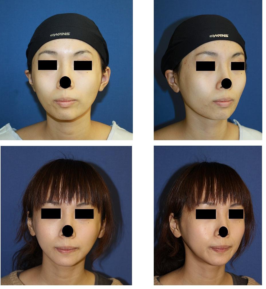 下顎骨スティック骨切術、外板外し_d0092965_17533937.jpg