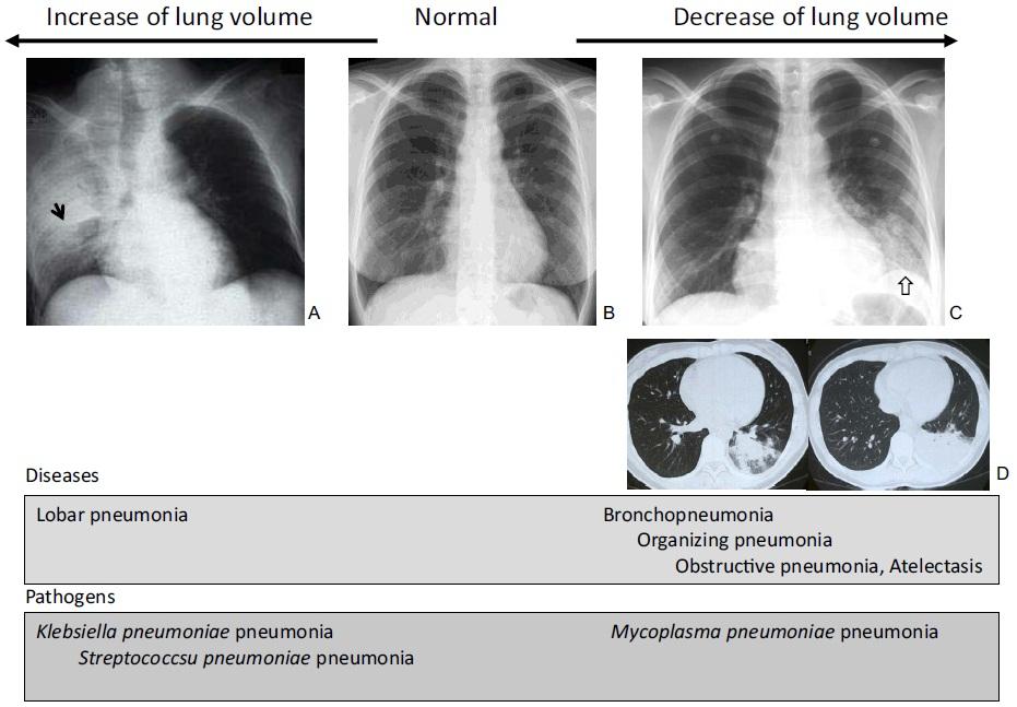 市中肺炎における肺容積_e0156318_1022098.jpg