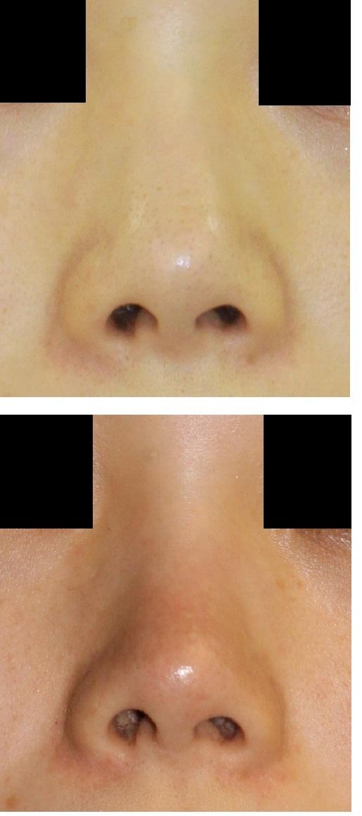 いちご鼻治療_d0092965_0455163.jpg