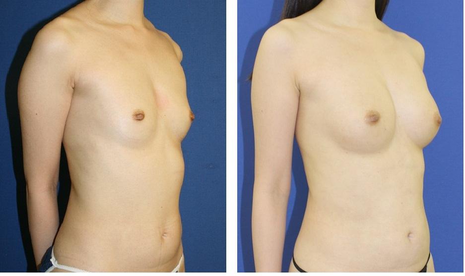 脂肪移植豊胸    3年2か月後検診_d0092965_0325018.jpg