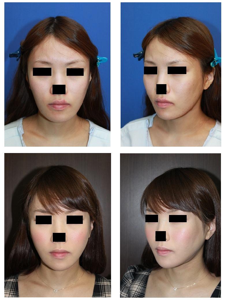 下顎骨スティック骨切術 術後約7か月_d0092965_3505667.jpg