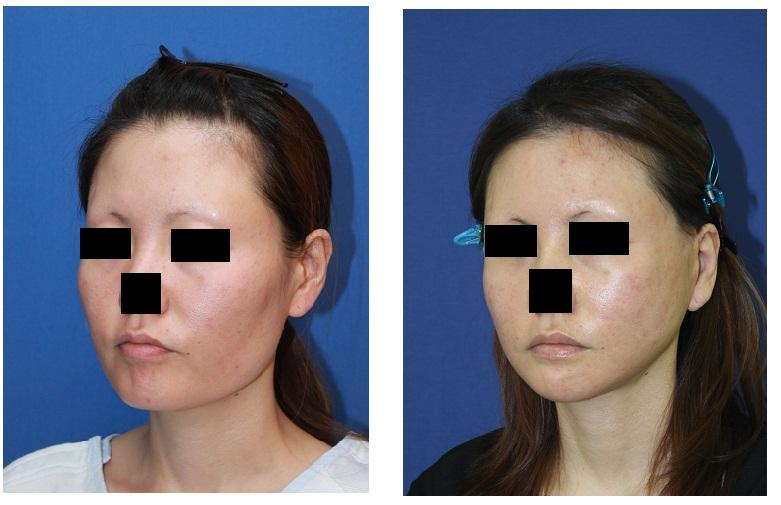 顎骨スティック骨切術、頬骨アーチリダクション、頬骨前方削り、鼻翼基部骨移植、ロアーリフト_d0092965_3525919.jpg