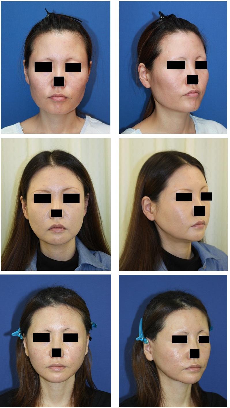 顎骨スティック骨切術、頬骨アーチリダクション、頬骨前方削り、鼻翼基部骨移植、ロアーリフト_d0092965_35276.jpg