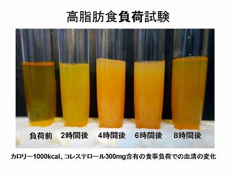 高脂肪食負荷試験_a0152501_1740452.jpg