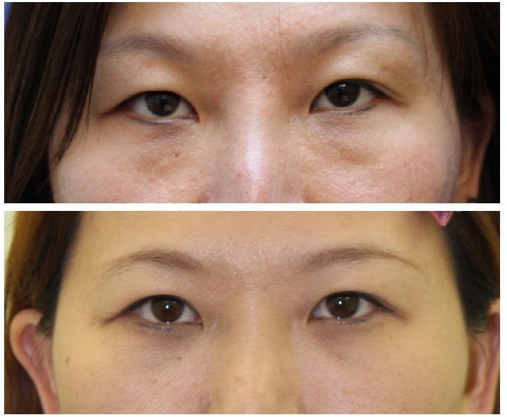 たれ目形成および下眼瞼脂肪摘出   : 脇山先生_d0092965_10494689.jpg