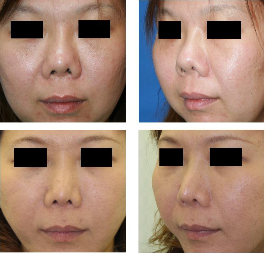 鼻中隔延長術(肋軟骨)、鼻尖縮小形成術、鼻プロテーゼ入替術_d0092965_1241424.jpg