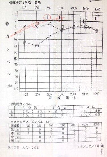 急性低音障害型感音難聴 治療日記_a0140991_11315243.jpg