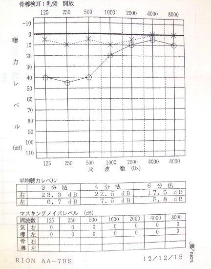 急性低音障害型感音難聴 治療日記_a0140991_11321970.jpg