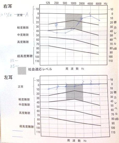 急性低音障害型感音難聴 治療日記_a0140991_1137180.jpg