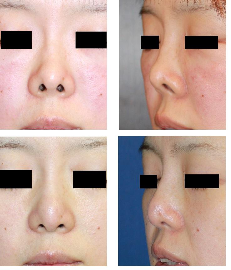 •他院培養軟骨移植術術後鼻変形、 耳軟骨移植術(二回)に対する修正術 : 鼻孔縁下降術 2_d0092965_2213715.jpg