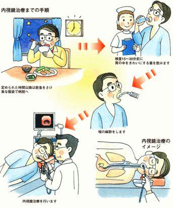 定期胃カメラ_c0025115_19202515.jpg