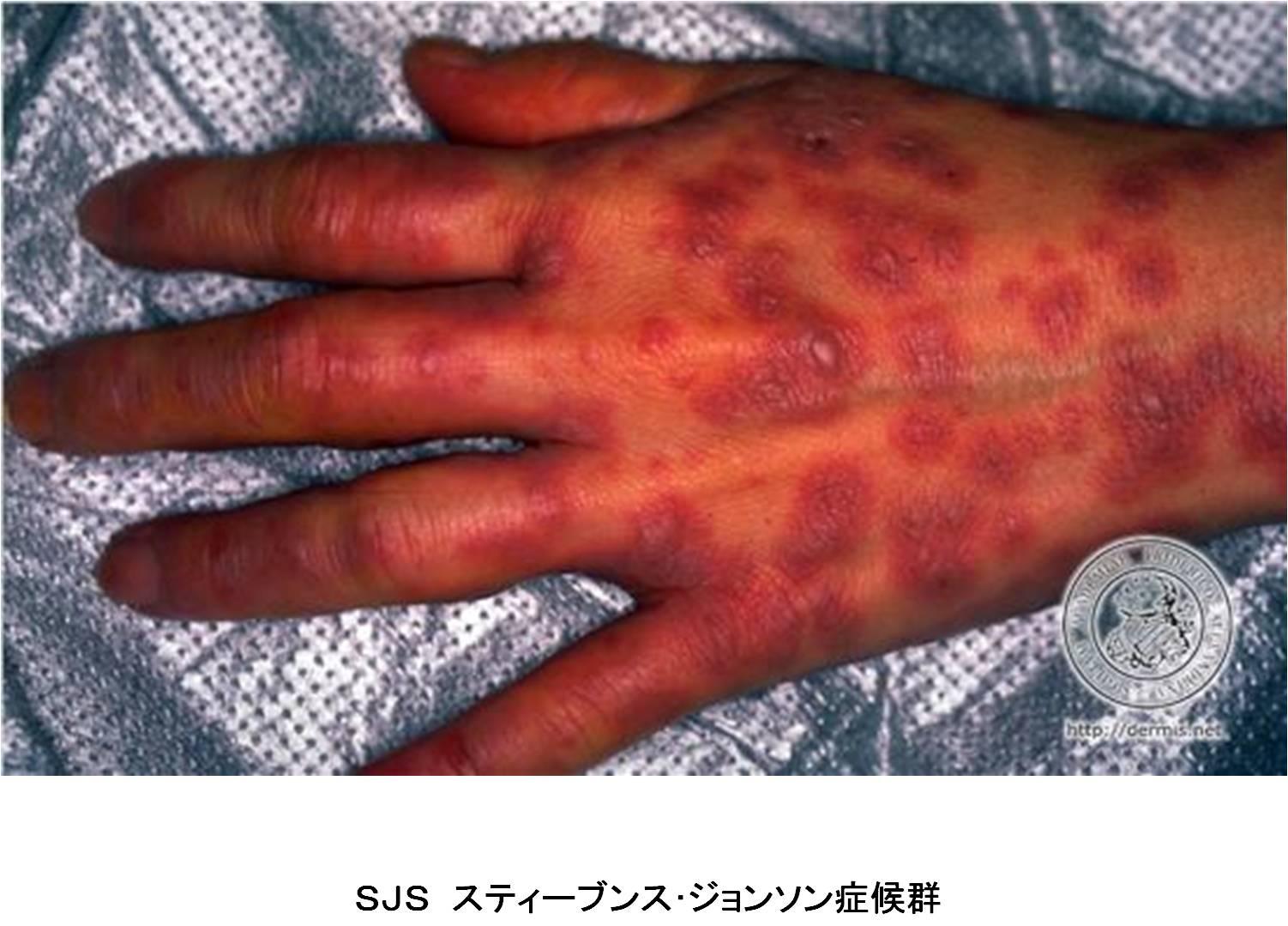 2013年3月26日教室 『薬の副作用、薬害について』_c0219616_153594.jpg