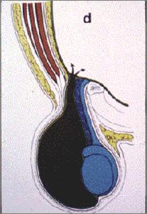 陰嚢が大きくなったら_a0221584_14275965.png