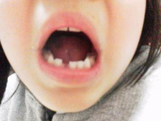 娘の歯が抜けた。_a0029060_2154867.jpg