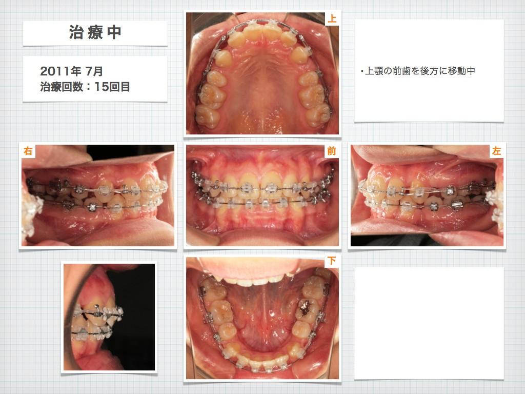 治療例:N・Tさん 18才女性の高度な出っ歯の治療例_e0025661_18545753.jpg