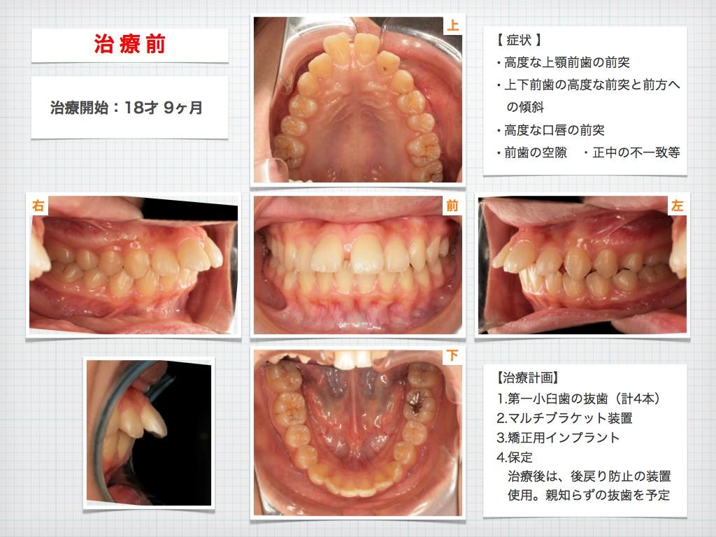 治療例:N・Tさん 18才女性の高度な出っ歯の治療例_e0025661_9145432.jpg