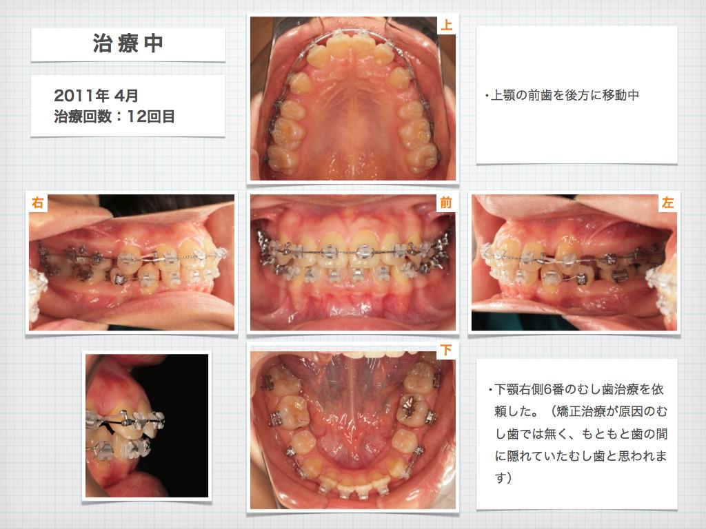 治療例:N・Tさん 18才女性の高度な出っ歯の治療例_e0025661_9151117.jpg