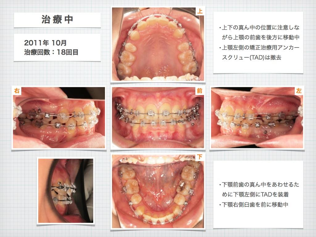 治療例:N・Tさん 18才女性の高度な出っ歯の治療例_e0025661_9151644.jpg