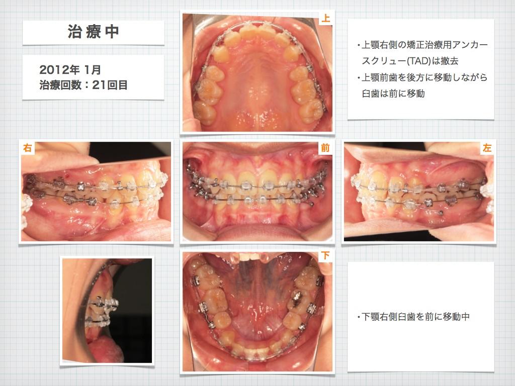 治療例:N・Tさん 18才女性の高度な出っ歯の治療例_e0025661_9152128.jpg