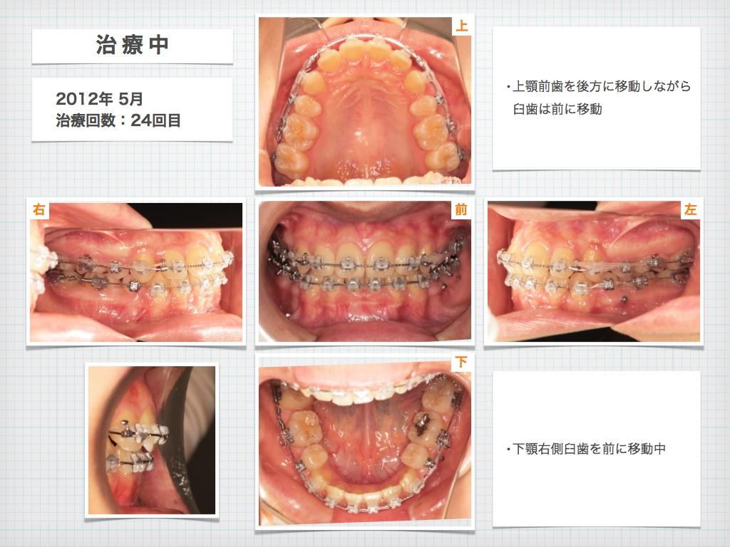 治療例:N・Tさん 18才女性の高度な出っ歯の治療例_e0025661_9152431.jpg