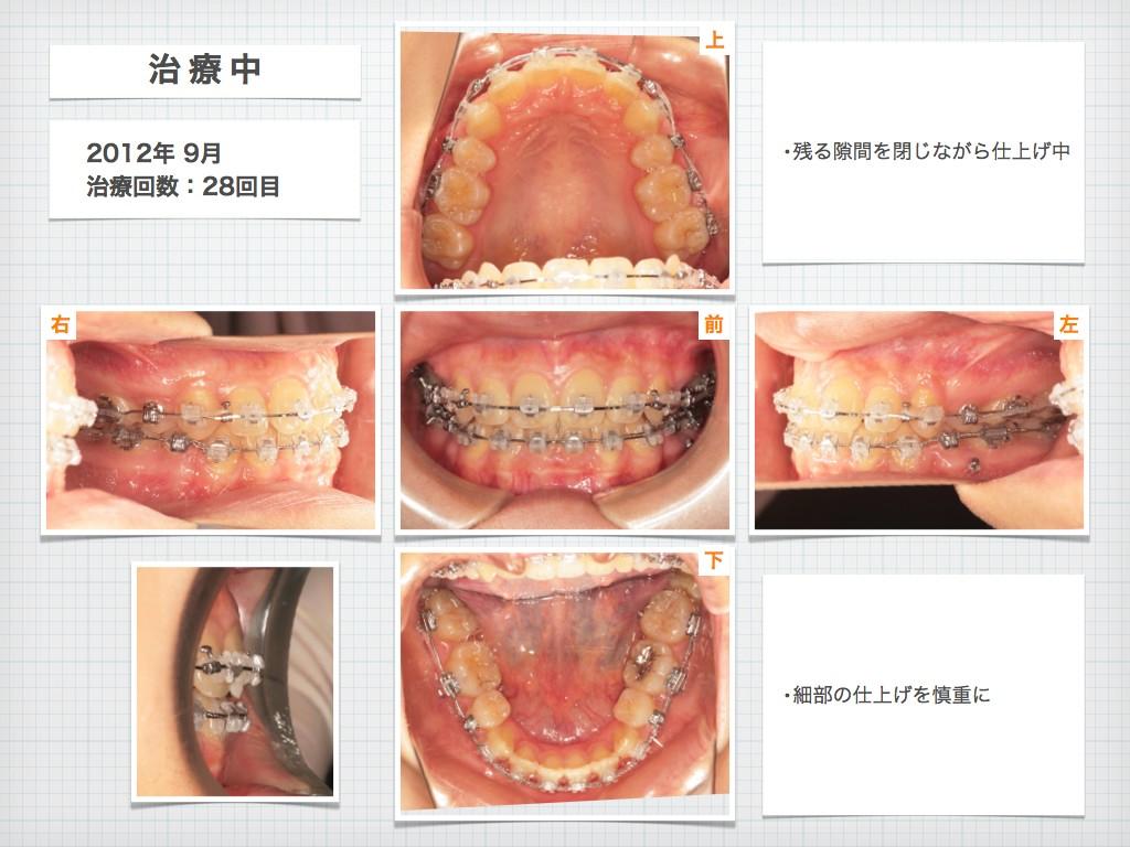 治療例:N・Tさん 18才女性の高度な出っ歯の治療例_e0025661_9152838.jpg