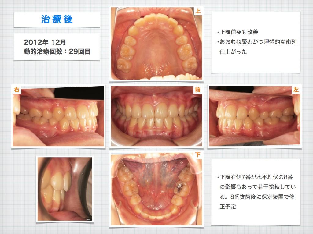 治療例:N・Tさん 18才女性の高度な出っ歯の治療例_e0025661_9153341.jpg