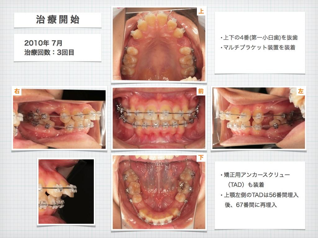 治療例:N・Tさん 18才女性の高度な出っ歯の治療例_e0025661_915550.jpg