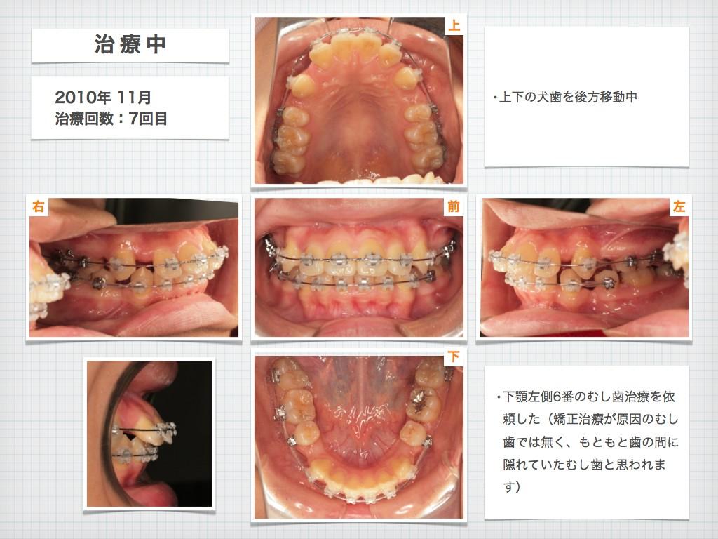 治療例:N・Tさん 18才女性の高度な出っ歯の治療例_e0025661_915896.jpg