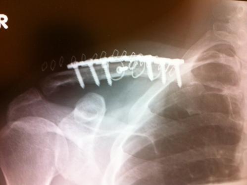 右鎖骨骨折の総括_a0170631_1235283.jpg