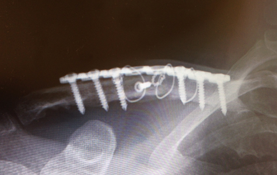 右鎖骨骨折の総括_a0170631_12362913.jpg