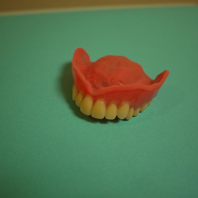 シリコン入れ歯(上顎)_b0184294_21415093.jpg