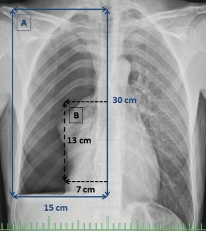 虚脱率50%以上の気胸は喫煙者に多く、外科治療を受ける可能性が高い_e0156318_21254319.jpg