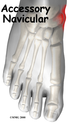 足の内側の飛び出た骨 ~有痛性外頸骨~_a0070928_21345084.jpg