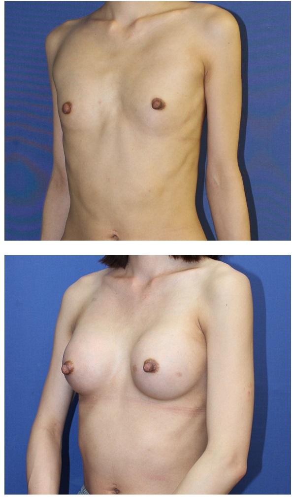 人工乳腺豊胸術 (300cc cohesive silicone gel implant)_d0092965_0174063.jpg