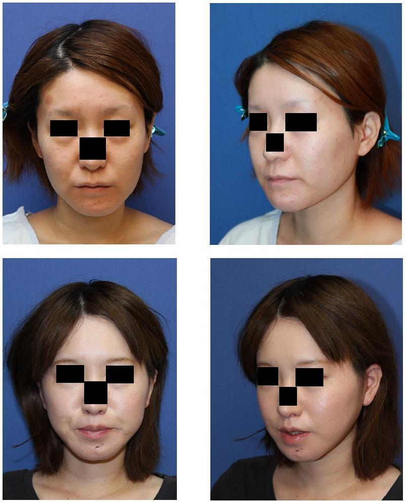 スティック骨切術、ロアーリフト、人中短縮術、上下口唇増大術、顎下アキュリフト_d0092965_155111.jpg