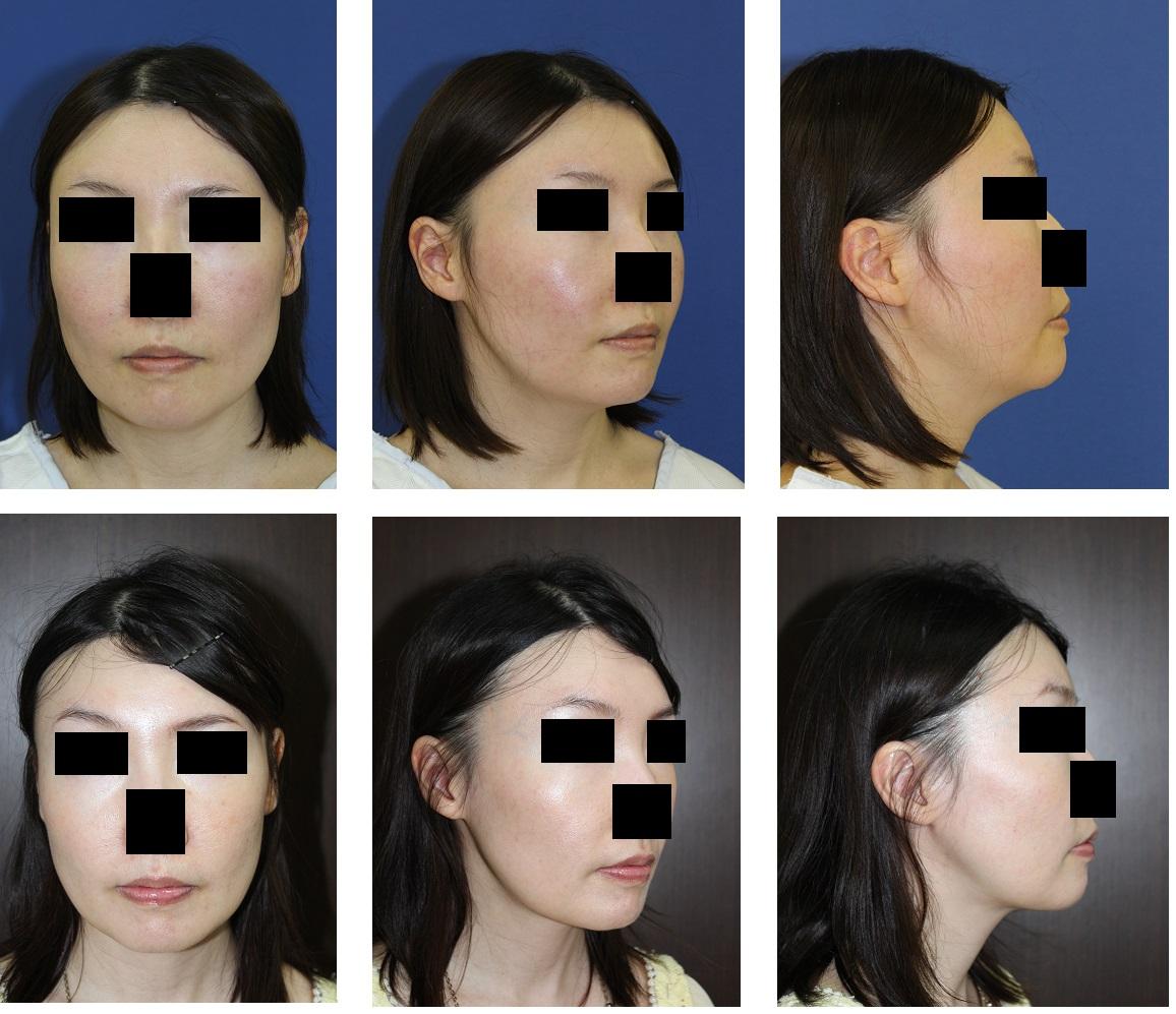 メーラーファットアキュリフト、 涙溝(ゴルゴライン)へのPPP注射、顎下脂肪吸引、顎プロテーゼ除去_d0092965_19185149.jpg