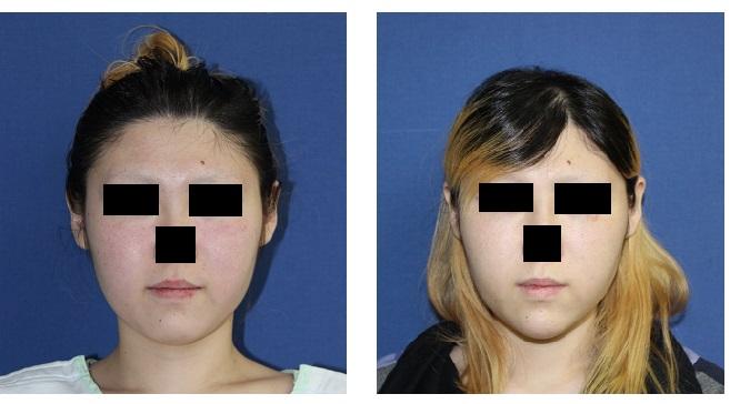 アキュリフト(両頬、頬骨上)  、 顎先エンドプロテーゼ_d0092965_2361935.jpg