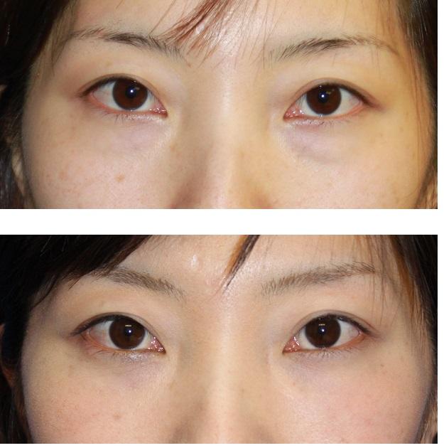 目の下くま改善  ( 両下眼瞼脂肪取り および 下眼瞼脂肪移植)_d0092965_2543794.jpg